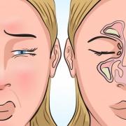 Így szabadíthatod fel az orrmelléküregedet az ujjaiddal! - Vége a szipogásnak!