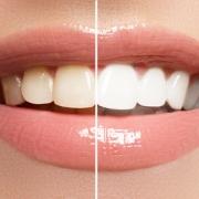 Otthoni fogfehérítési módszerek