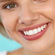 Az otthoni fogfehérítés veszélyei - ezért bízd inkább profira!