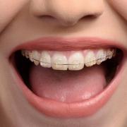 Íme, az 5 leggyakoribb tévhit a fogszabályozásról – Mi az igazság?